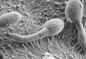 kandida pod mikroskopom